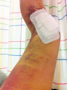 knee operation 352314